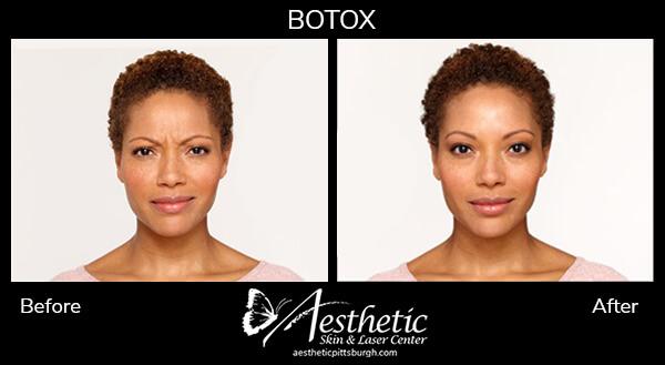 botox-b-a-2