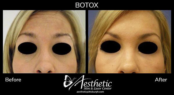 botox-b-a-5
