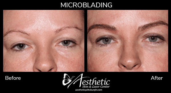 Microblading before & after photo