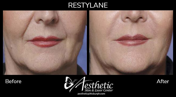 restylane4_before_after-1