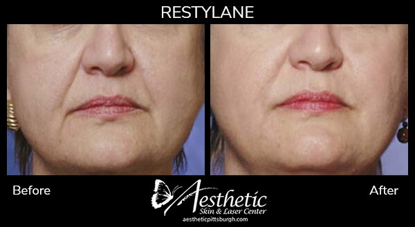 restylane5_before_after-1