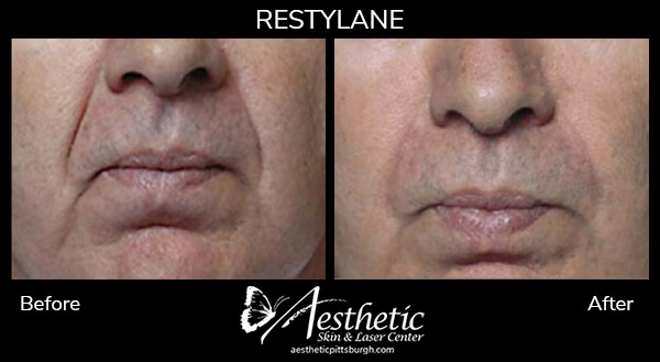 restylane7_before_after-1