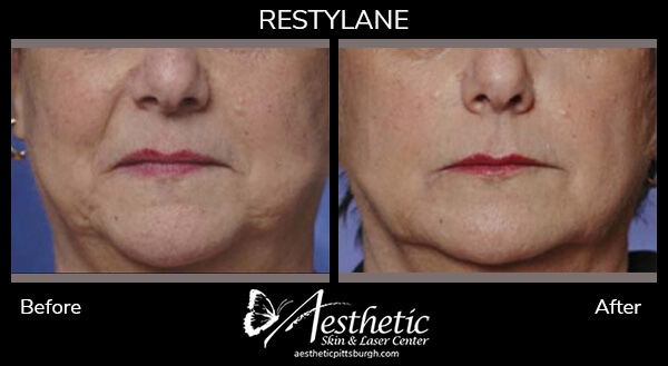 restylane8_before_after-1