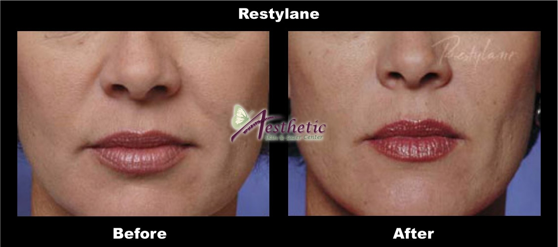 restylane9_before_after