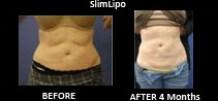 SlimLipo-Most-Popular-Areas1