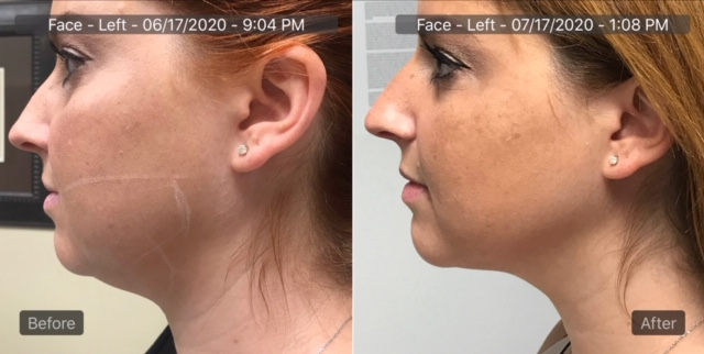 Non Surgical Facelift Near Me | Springfield IL | Facelift ...