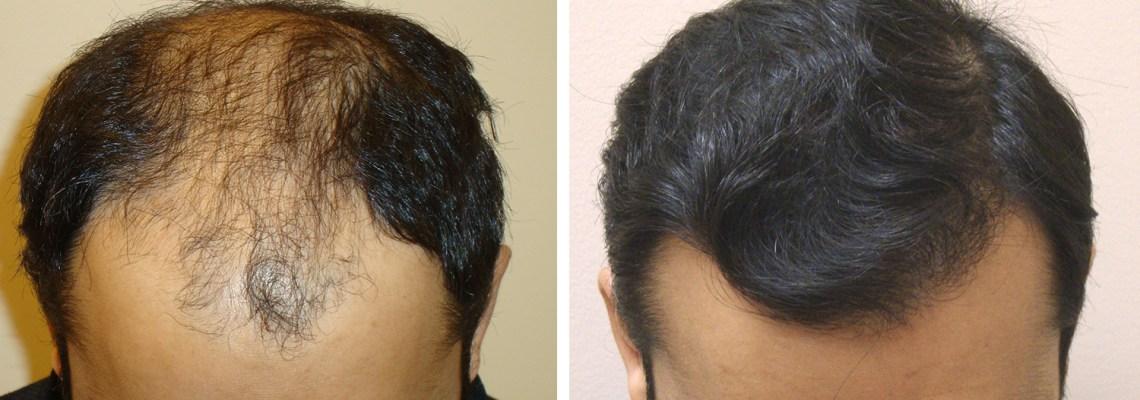 Aesthetics Hair Restoration