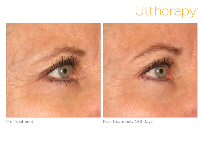 Ultherapy VIP Event: Lift & Learn