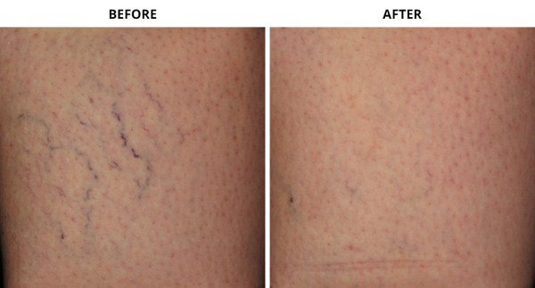 Vein_Before_After