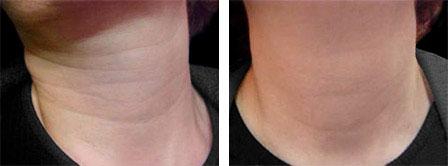 Neck Filler | Neck Lift | Botox | Dysport