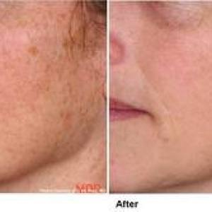 facial-hair-dermaplaning-treatments-reno-nevada