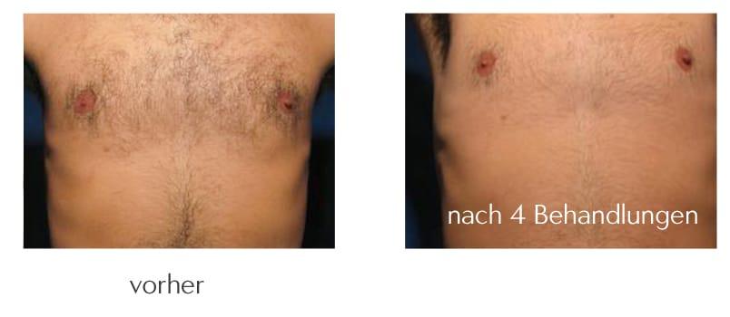 brusthaare-entfernen-lasern-aesthetikzentrum-rostock-web
