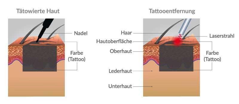 Nichts ist für die Ewigkeit – so funktioniert Laser Tattooentfernung