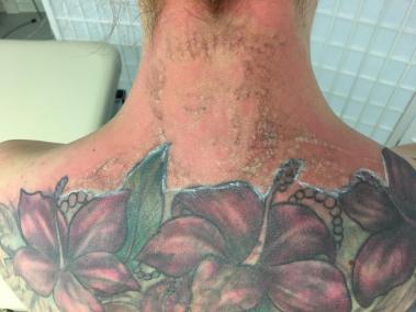 Tattooentfernung Rostock nach der 2. Behandlung