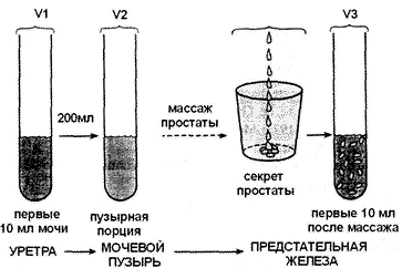 Elena malysheva a monasztikus teat psoriasis- affiliatemarketing.hu Giardia u psa lecba