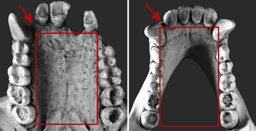 Evolución del tamaño de los dientes y el cerebro en nuestros ...