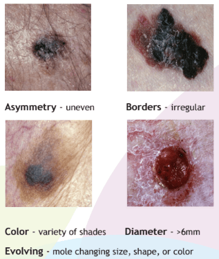 Skin Cancer ABCDE Tool