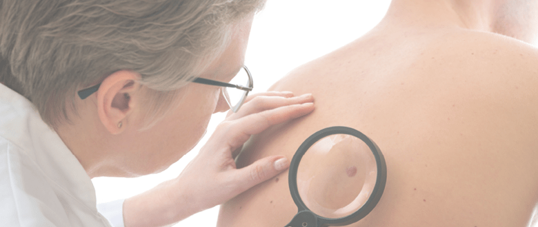 Skin Cancer Prevention Treatment Affiliated Dermatology
