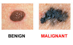 b - ABCDEs of Skin Cancer.jpg