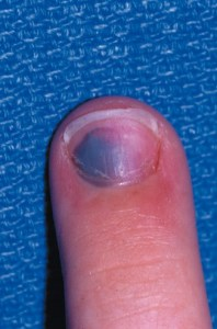 Fingernail affected by trauma. Blood appears purple beneath the nail.