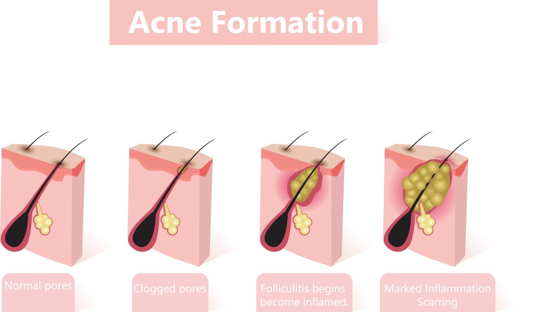 how does acne form