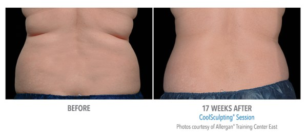 CoolSculpting before after flanks female.jpg