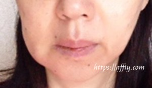 歯周病治療フラップ手術の体験談