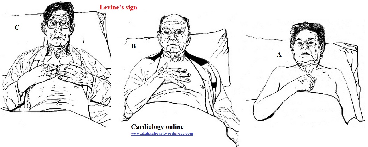 Body language and diagnosis of ischemic /non-ischemic
