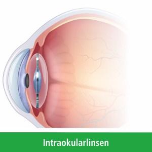 Abbildung Intraokularlinse im Auge