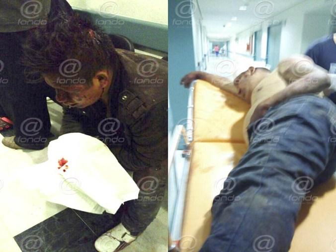 Fueron trasladados en situación delicada al hospital.