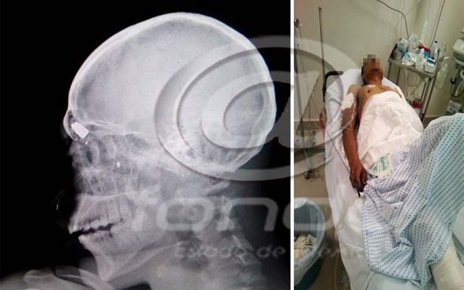 Una de las balas le quitó al vista de un ojo.