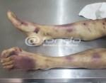»VIDEO: Filtran imágenes del reo asesinado a golpes dentro de penal de Chiconautla