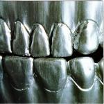 Change_Of_Heart_-_Steel_Teeth
