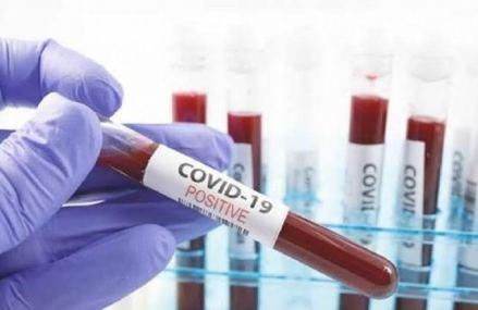 Covid-19 en RDC : 251 nouveaux cas confirmés et 8 décès ( Bulletin)