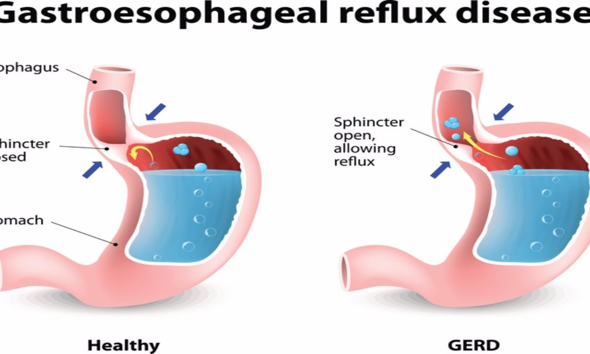 hight resolution of dental approach to erosive tooth wear in gastroesophageal reflux disease