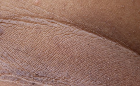 4 Skin Damages That You Can Care About
