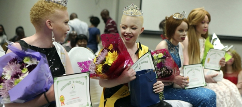 Mambinge and Sibanda Emerge 2019 Zimbabwe Mr. and Miss Albinism