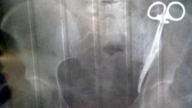 Russian woman walks around for 23 years with surgical clamp in her stomach