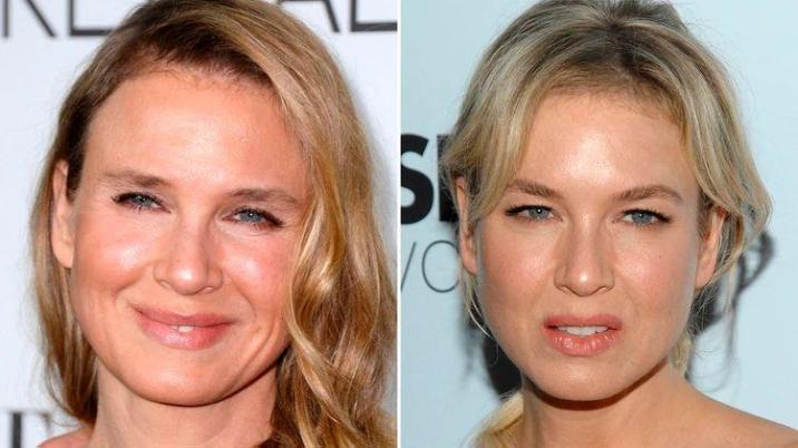 consequences of surgeries on Renée Zellweger's face
