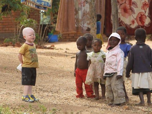 Albino's victims of ritual crimes in southern Africa