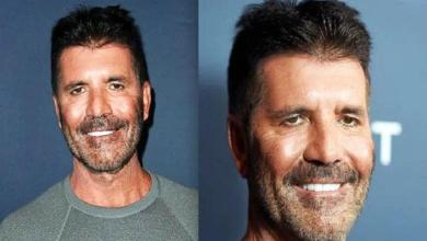 What happened to Simon Cowell's face?