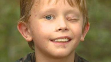 """Boy (8) survives attack by cougar: """"I tried to stab him in the eye"""""""