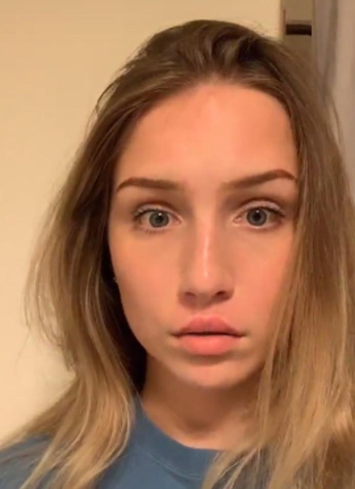 Experts warn against cheap alternative lip fillers: 'Never stick your upper lip with superglue'