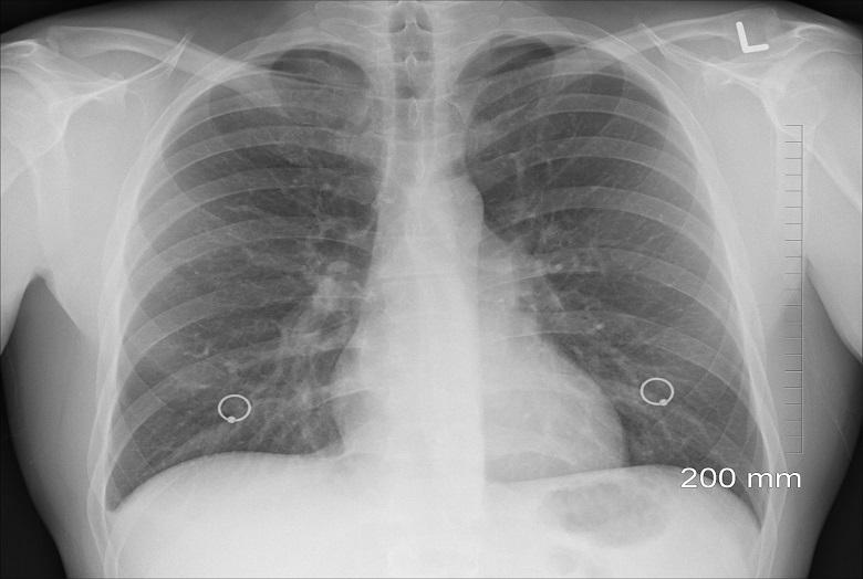 Doctors remove swallowed coin from patient's lung
