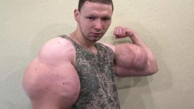 Man injected oil into his biceps, he fears losing arms