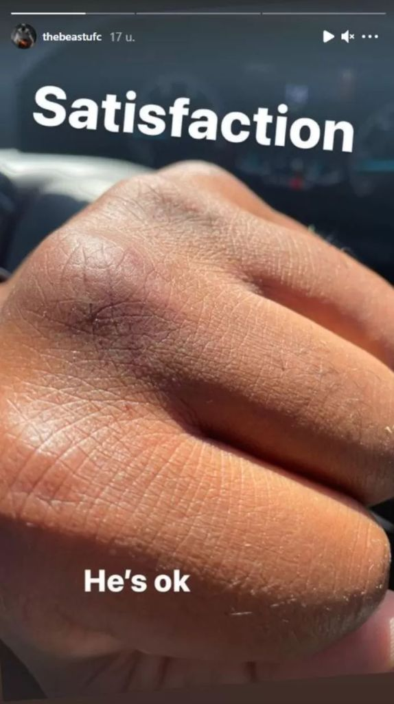 Lewis's fist after he was done with the thief