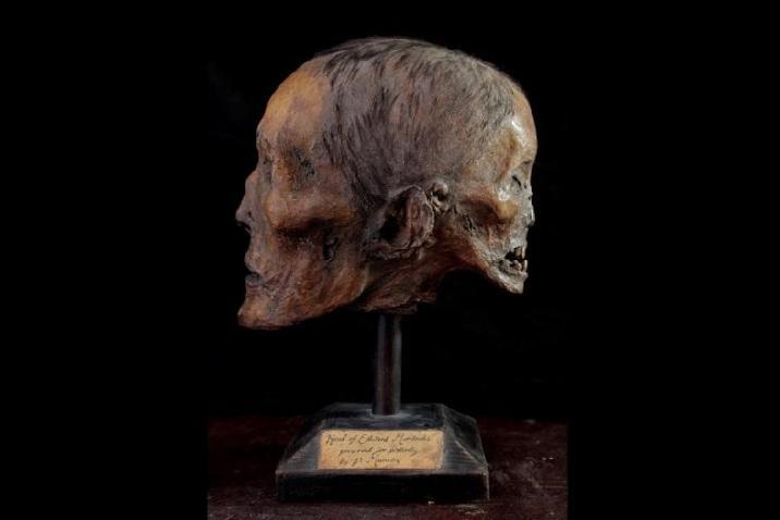 The assumed mummified skull of Edward Mordrake. The image shows a papier-mâché sculpture by the artist Ewart Schindler.