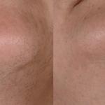 Fotográfico de la barbilla: antes y después