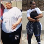 Extreme Weight Loss: Why These 2 Women Had Weight Loss Surgery