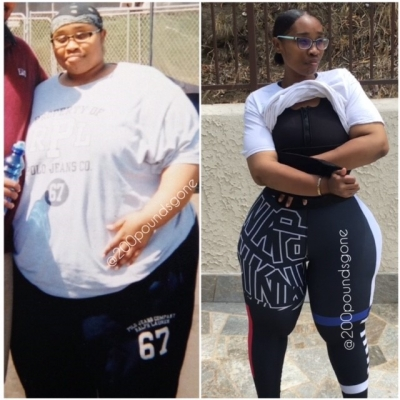 extreme weight loss why these 2 women had weight loss surgery